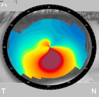 Топографическая картина кривизны роговицы при развитой стадии кератоконуса